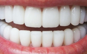 EcoDenta nebo krásný bílý úsměv ...;)